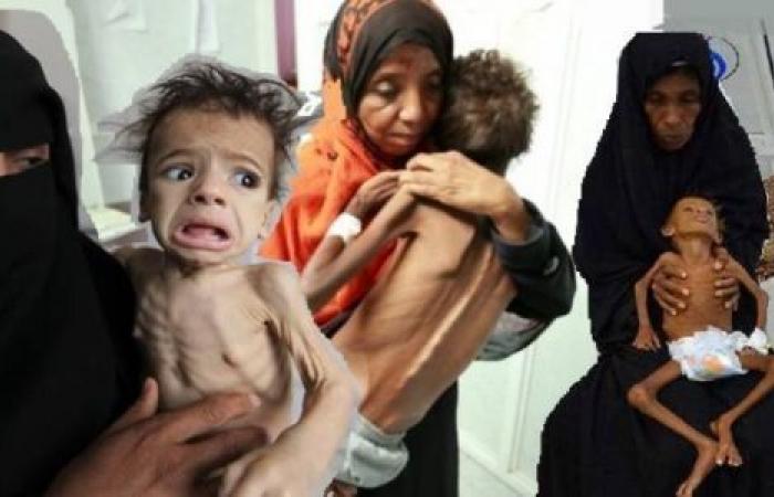 ربع مليون شخص يصارعون الموت.. الجوع ينهش أجساد اليمنيين