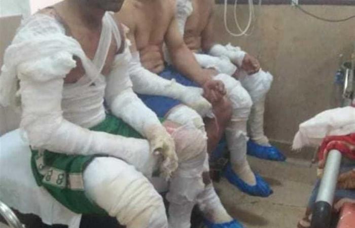 #المصري اليوم -#حوادث - إصابة 12 عامل بحروق في مصنع طوب بالفيوم موجز نيوز