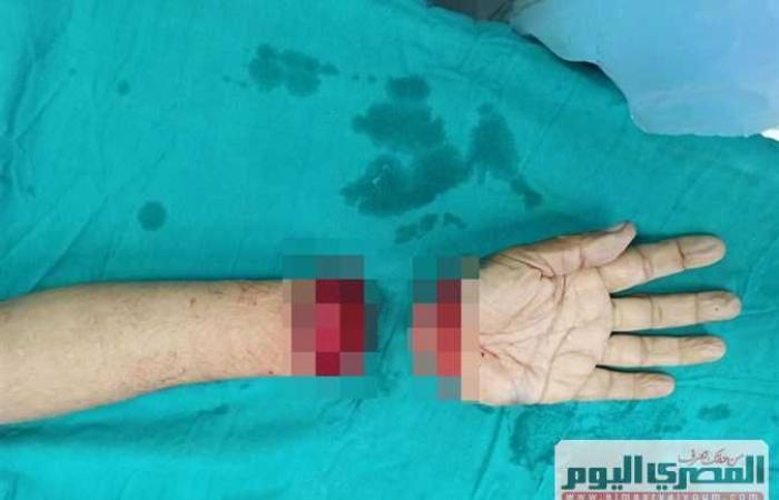 #المصري اليوم -#حوادث - حكاية مواطن دخل مستشفى حكومي بالإسكندرية حاملًا كف يده في كيس بلاستيك (صور صادمة) موجز نيوز