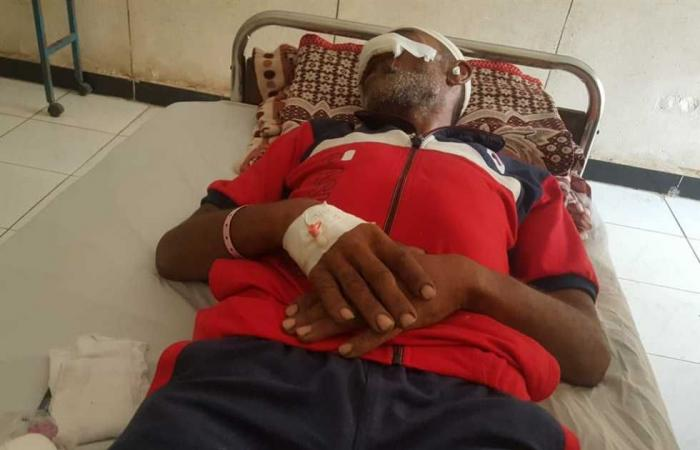 #المصري اليوم -#حوادث - قطعت أنفه في معركة بالغربية.. وأطباء المنصورة الدولي: لا يمكن إعادتها موجز نيوز