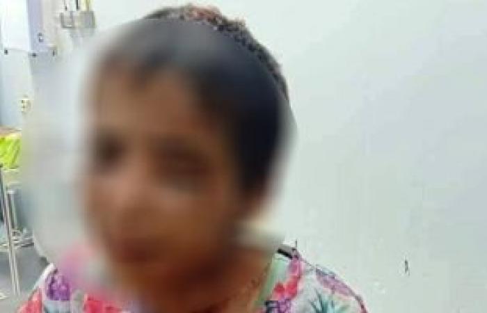 #اليوم السابع - #حوادث - النيابة تطلب التحريات والتقرير الطبى حول اتهام عامل بتعذيب ابنته بأوسيم